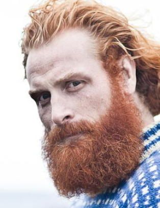 Kristoffer Hivju with Long Hair and a Receding Hairline