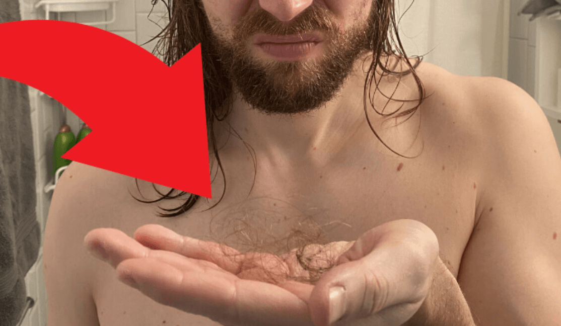 "It was only 68 hairs on the shower tiles in ""Am I Balding or Shedding?"""