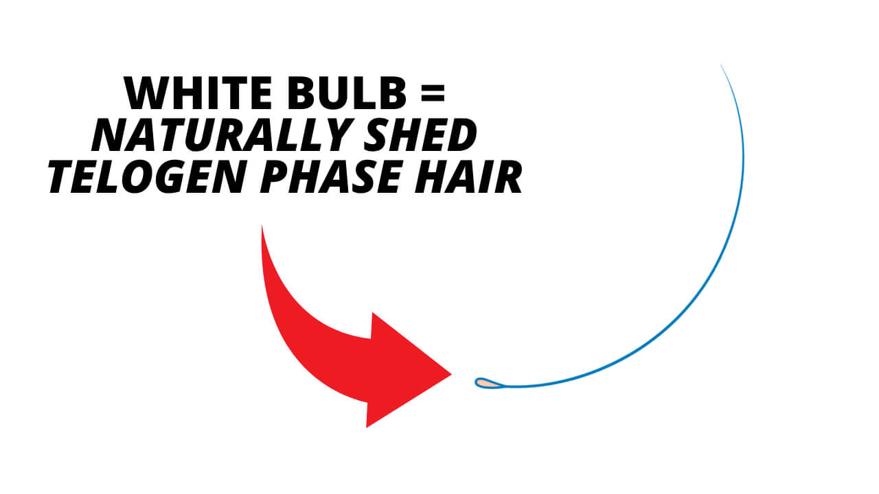 Diagram of telogen phase hair, a white bulb is an indication of natural shedding.