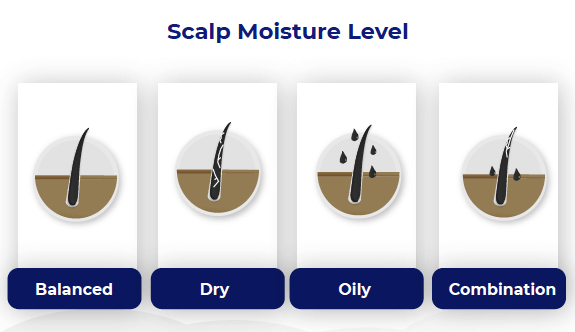 Scalp moisture chart from Trav White in his greasy hair guest post