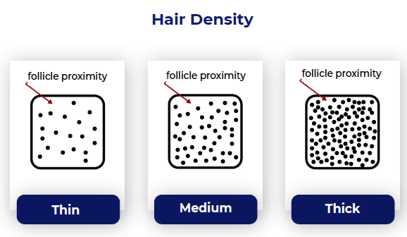 Hair density chart from Trav White in his greasy hair guest post