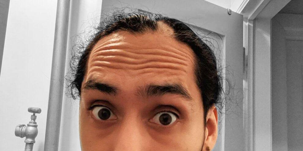 Alopecia Experience with Steven Jimenez