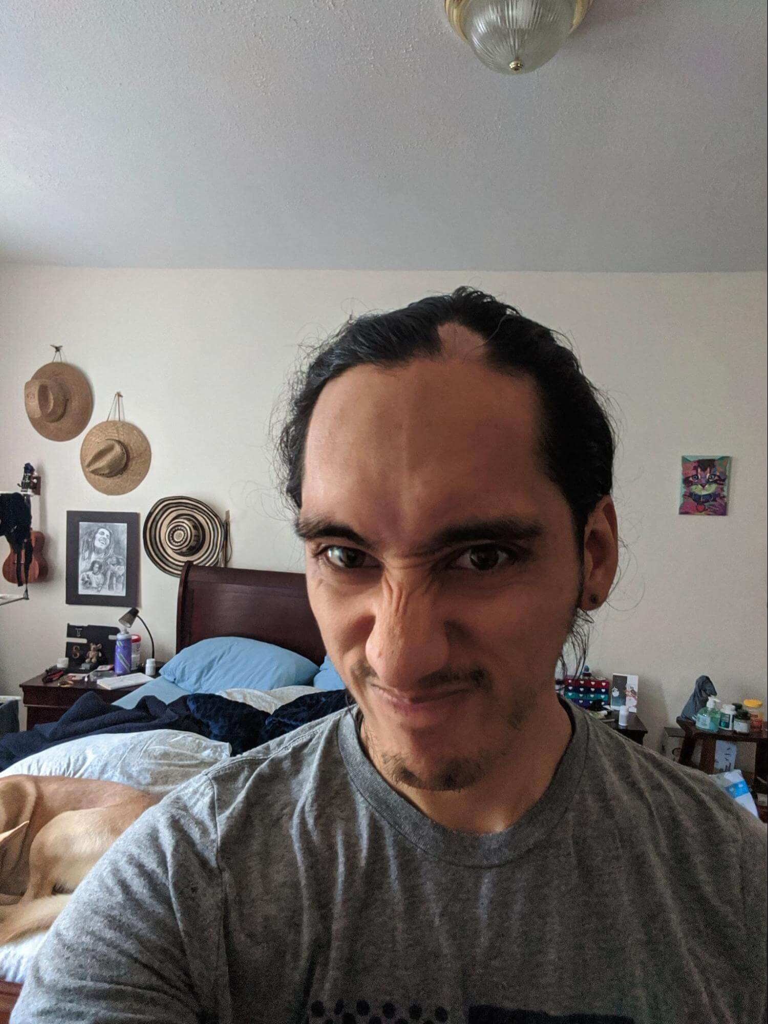 Steven grimacing at a patch of hair loss from alopecia