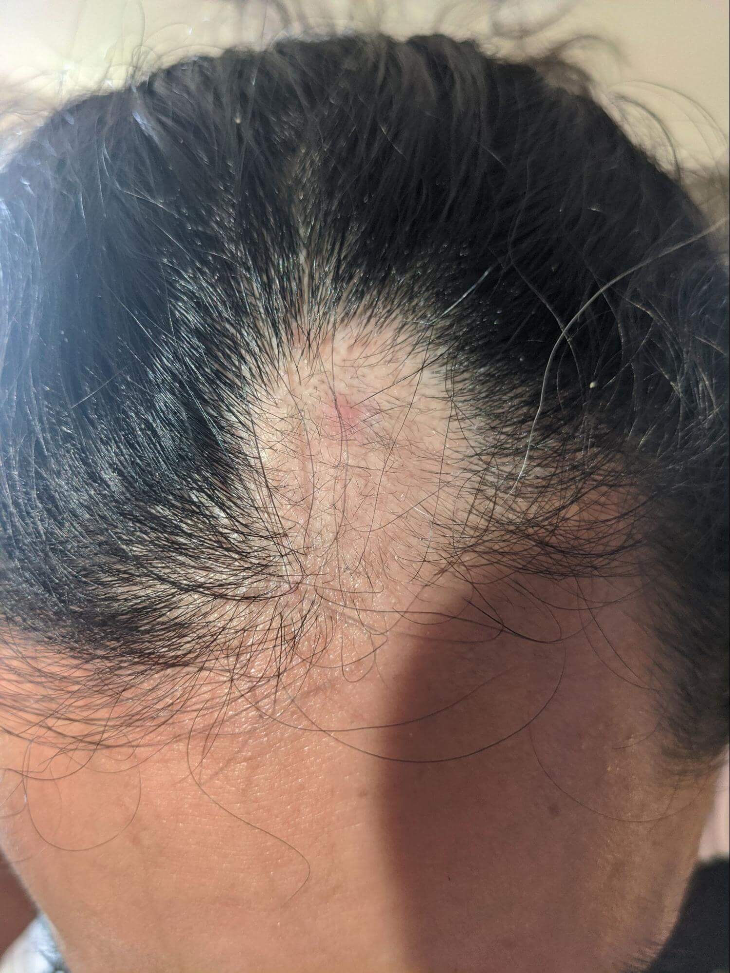 Close-up of a circular patch of hair loss from alopecia.